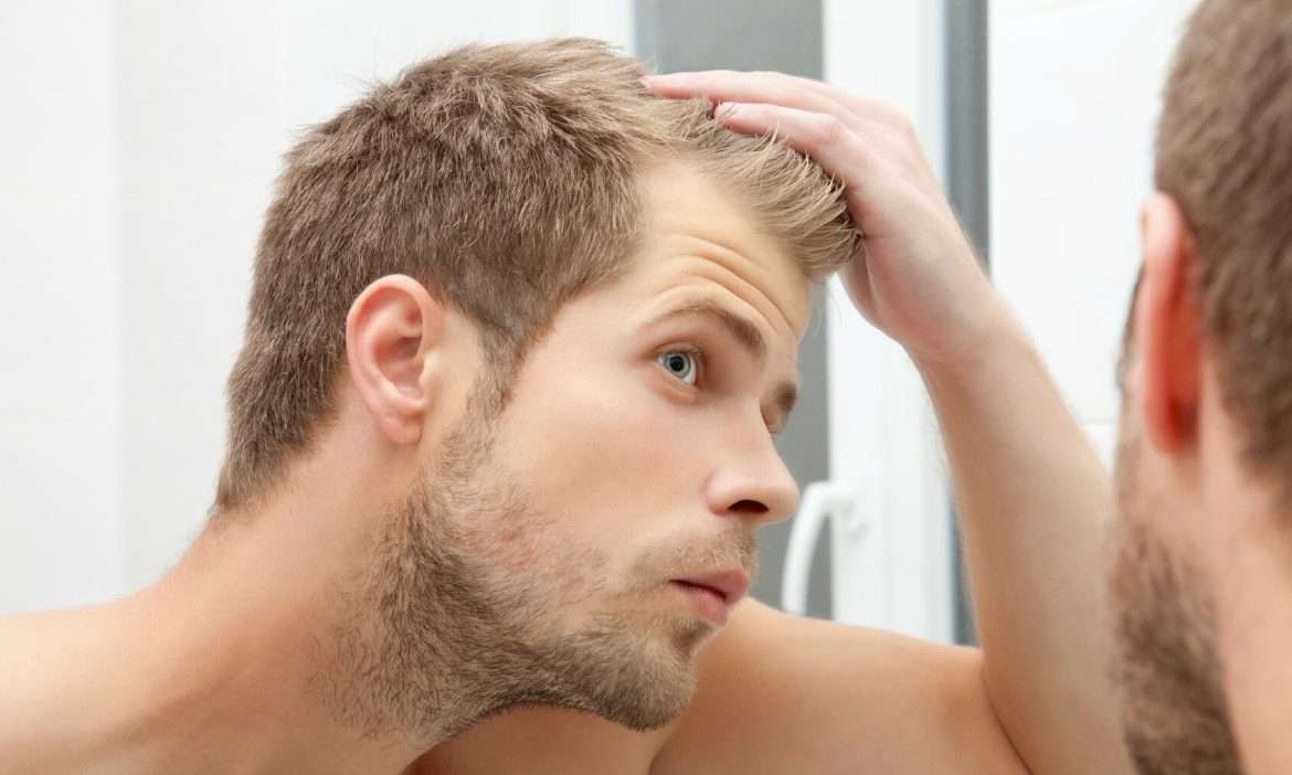 Hair Color and Hair Loss