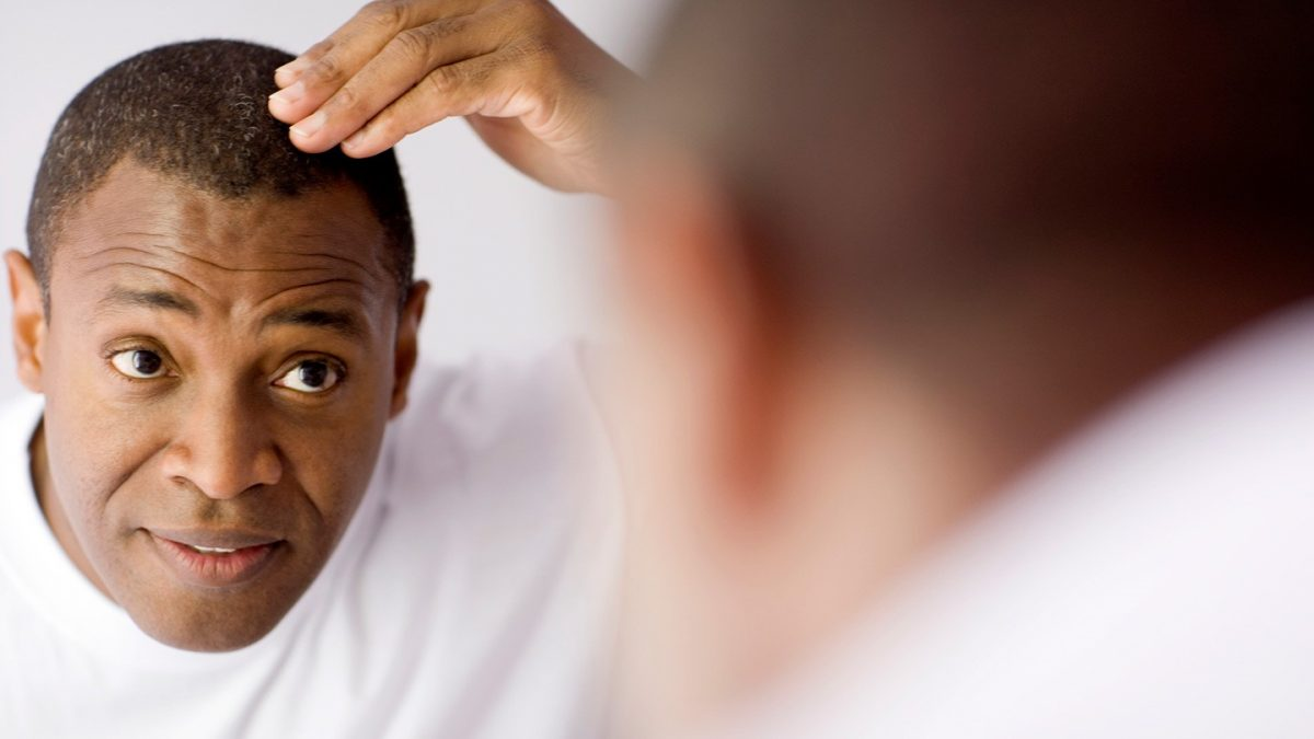 Hair Transplant Pakistan an Emerging Market For Cosmetic Procedures