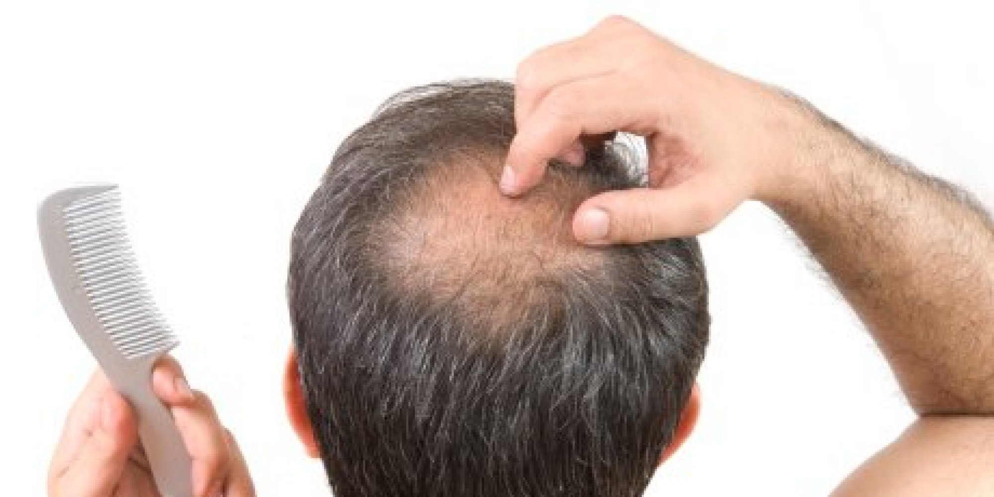 How to Prevent Hair Loss Naturally?