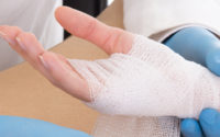How to Treat Dislocated Hand?