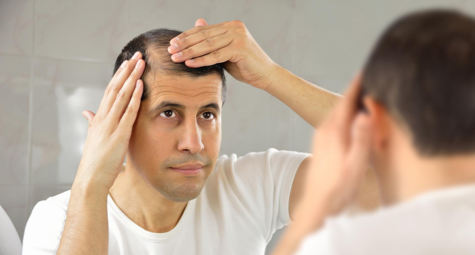 Reasons for Female Hair Loss? Don't Ignore This!