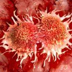 SARCOMA Cancer Treatment In India at Mumbai at Low Price