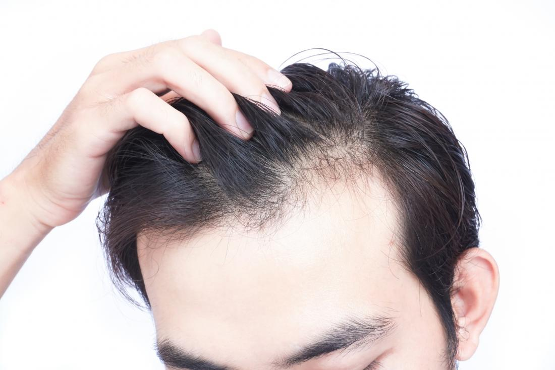 Simple Tips to Stop Hair Loss in Females After Pregnancy