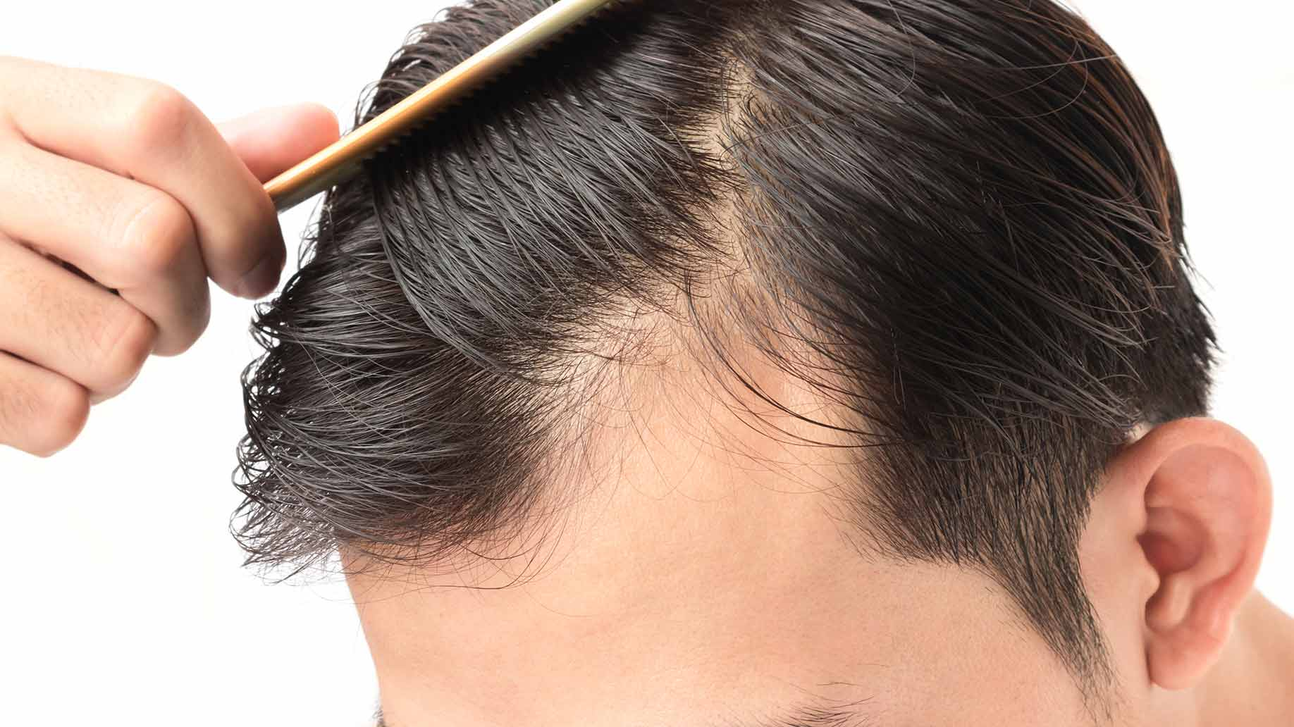 The Most Frequent Factors That Cause Hair Loss