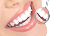 Tips on How to Maintain Implants in Your Mouth